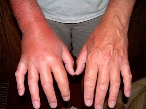 На фотографии показан отек руки после осиного укуса