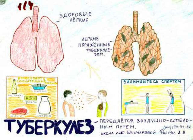 Туберкулез лёгких